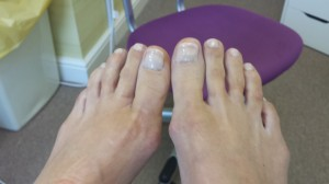Nail Reconstruction After 1